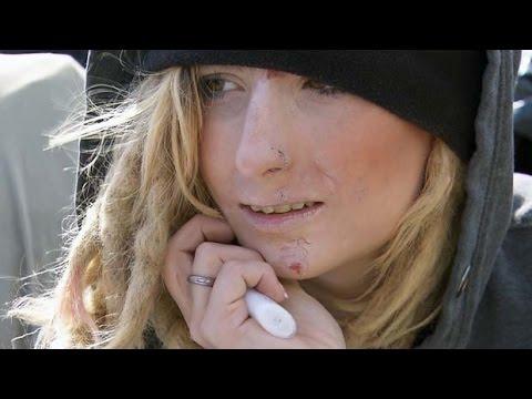 лицо зависимой от фентанила девушки